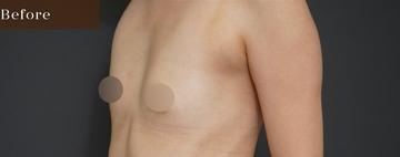 アーククリニックの豊胸・胸の整形の症例写真[ビフォー]
