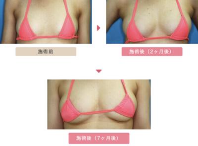 【豊胸】高濃度脂肪注入術の症例写真