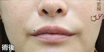 銀座みゆき通り美容外科 大阪院の口もと、唇の整形の症例写真[アフター]