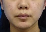 東京中央美容外科・美容皮膚科の痩身、メディカルダイエットの症例写真[アフター]