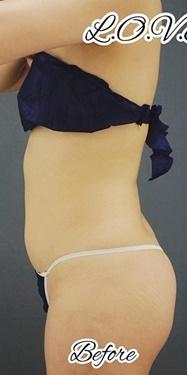 腹部ベイザー脂肪吸引の症例写真[ビフォー]