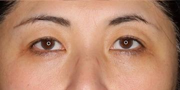 SELECT CLINIC(セレクトクリニック)の目・二重の整形の症例写真[アフター]