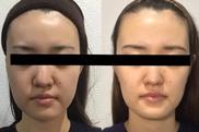 LaLa clinic ララクリニック大阪梅田院のシワ・たるみ(照射系リフトアップ治療)の症例写真