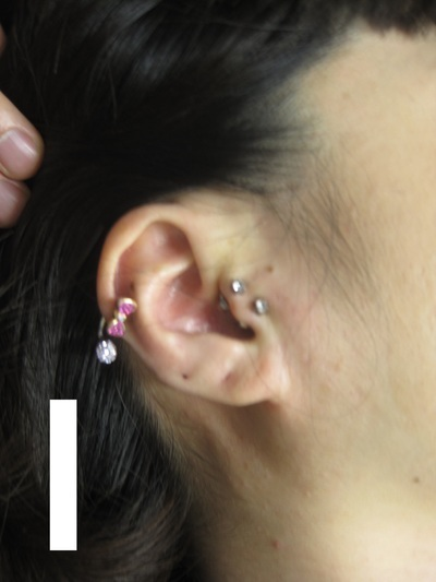 耳軟骨 ヘリックス&トラガスの症例写真