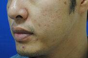 東京イセアクリニック銀座院のニキビ治療・ニキビ跡の治療の症例写真[ビフォー]