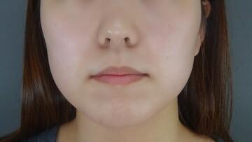 TCB 東京中央美容外科の顔のしわ・たるみの整形(リフトアップ手術)の症例写真[ビフォー]