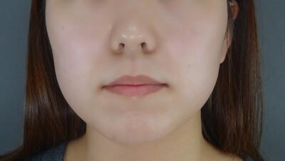 TCB式小顔美肌再生 クリスタルの症例写真[ビフォー]