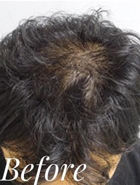 表参道スキンクリニックの薄毛治療の症例写真[ビフォー]