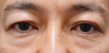 品川美容外科 渋谷院の目元整形・クマ治療の症例写真[ビフォー]