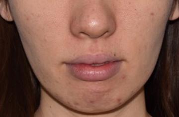 湘南美容クリニック新橋銀座口院の顔のしわ・たるみの整形(リフトアップ手術)の症例写真[ビフォー]