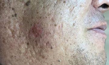 皮フ科 かわさきかおりクリニックのホクロ除去・あざ治療・イボ治療の症例写真[アフター]