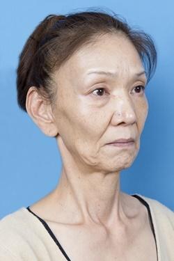 新宿中央クリニックの顔のしわ・たるみの整形(リフトアップ手術)の症例写真[ビフォー]