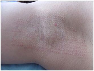 鹿児島三井中央クリニックのわきが手術・多汗症治療の症例写真[アフター]