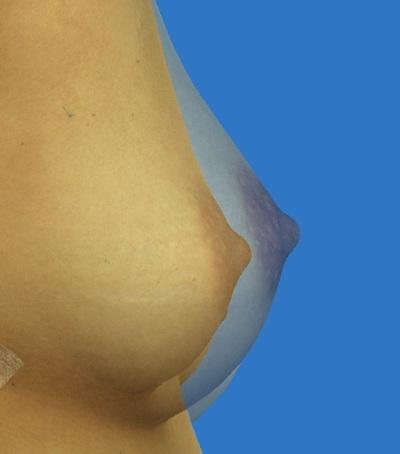 3Dプレミアム注入法によるコンデンスリッチ脂肪豊胸の症例写真