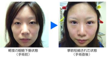 クリニーク大阪心斎橋 ❘ 梅田スカイナイトクリニックの目・二重の整形の症例写真