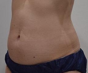 ノエル銀座クリニックの痩身、メディカルダイエットの症例写真[アフター]