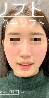 ルラ美容クリニックの顔のしわ・たるみの整形の症例写真[アフター]