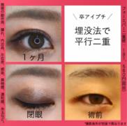 湘南美容クリニック名古屋 栄院の症例写真
