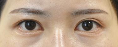 他院グラマラスライン形成手術後修正(植皮)※の症例写真[アフター]