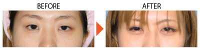 目頭切開の症例写真