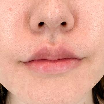 A CLINIC(エークリニック)の口元・唇の整形の症例写真[アフター]