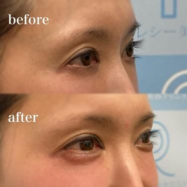 涙袋ヒアルロン酸注入の症例写真
