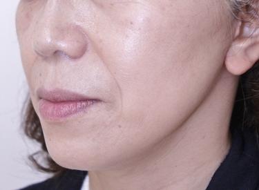 こめかみ・頬のフェイスリフトの症例写真[アフター]