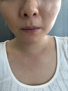 表参道美容皮膚科原宿本院のニキビ・ニキビ跡の治療の症例写真[ビフォー]