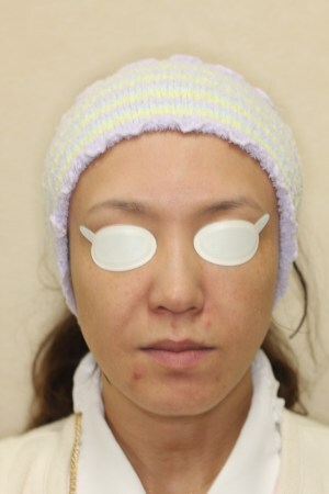 PDT(フォトダイナミックセラピー)治療の症例写真[ビフォー]