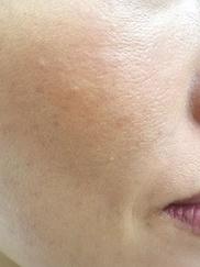 ノエル銀座クリニックのニキビ治療・ニキビ跡の治療の症例写真[アフター]
