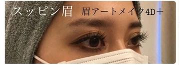 大西皮フ科形成外科医院のアートメイクの症例写真[ビフォー]