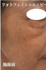 西宮SHUHEI美容クリニックのシミ取り・肝斑・毛穴治療の症例写真[ビフォー]
