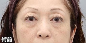 銀座みゆき通り美容外科 大阪院の目元の整形、くま治療の症例写真[ビフォー]