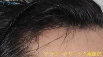 クラウンクリニック銀座院の植毛・自毛植毛の症例写真[アフター]