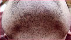 城本クリニックの医療レーザー脱毛の症例写真[ビフォー]