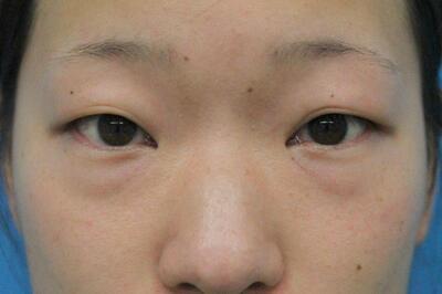 傷のできない目の下のクマ治療の症例写真[ビフォー]