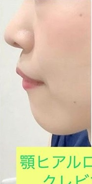 銀座長瀬クリニックの顔の整形(輪郭・顎の整形)の症例写真[ビフォー]