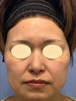 湘南美容クリニック 金沢院の顔のしわ・たるみの整形(リフトアップ手術)の症例写真[ビフォー]