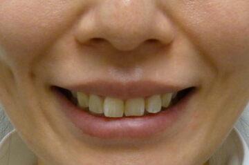 の口もと、唇の整形の症例写真[アフター]