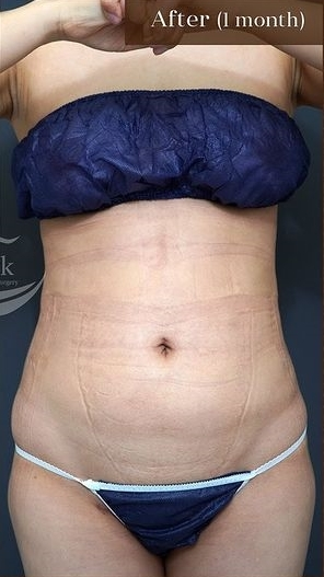 アーククリニックの脂肪吸引の症例写真[アフター]