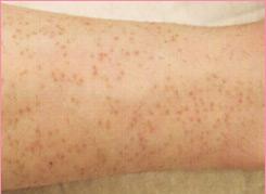 ■毛孔性苔癬(もうこうせいたいせん)の症例写真[ビフォー]