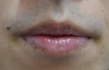 みずほクリニックのシミ取り・肝斑・毛穴治療の症例写真[ビフォー]