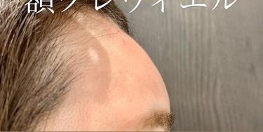 額のヒアルロン酸注入で丸み出しの症例写真[アフター]