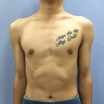 東郷美容形成外科 福岡のタトゥー除去(刺青・入れ墨を消す治療)の症例写真[ビフォー]