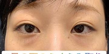 ルラ美容クリニック 高田馬場院の目元の整形、くま治療の症例写真[ビフォー]