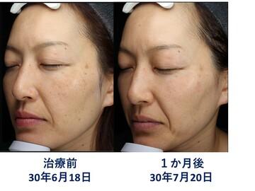 肌と歯のクリニック 東京ベイ幕張のシミ治療(シミ取り)・肝斑・毛穴治療の症例写真