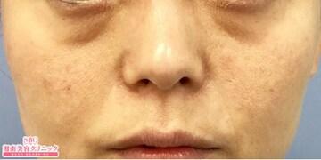 湘南美容クリニック大阪梅田院の目元の整形、くま治療の症例写真[ビフォー]