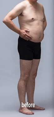 筋肉・美容クリニックの痩身、メディカルダイエットの症例写真[ビフォー]
