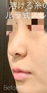 ルラ美容クリニック高田馬場院の鼻の整形の症例写真[ビフォー]