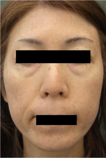 天神かよこクリニックのシミ治療(シミ取り)・肝斑・毛穴治療の症例写真[アフター]